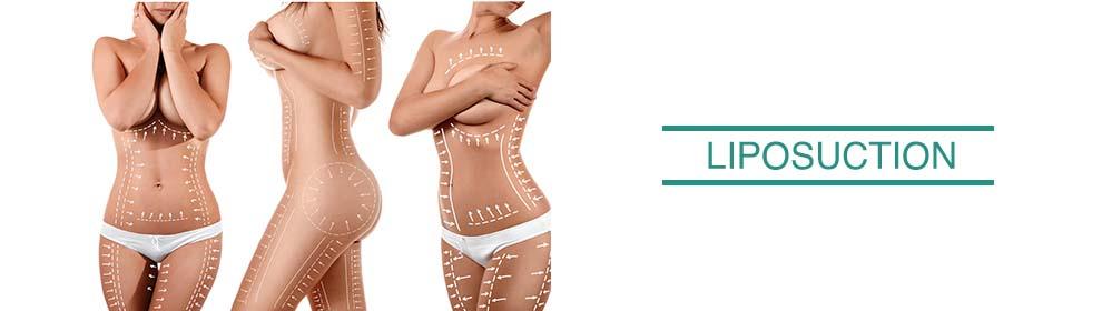 lasertouch-redo-slider-liposuction